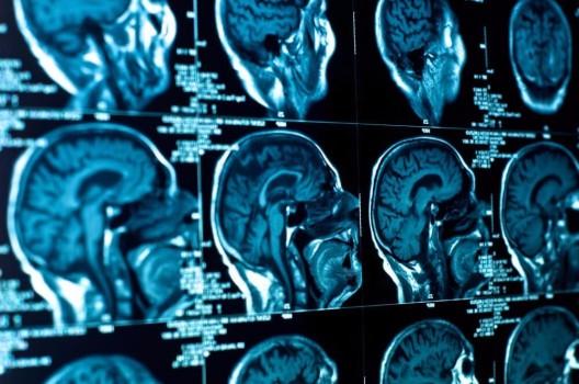 Studie: Nikotin hinterlässt tiefe Spuren im Gehirn