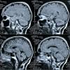 Neue Hirnforschungs-Studie widerspricht Gender-Mainstreaming