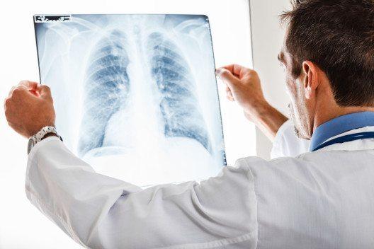 Luftverschmutzung soll das Sterberisiko von Lungenkrebs-Patienten erhöhen. (Bild: © Minerva Studio - shutterstock.com)